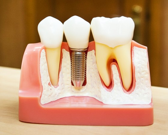 Имплантация зубов и остеопластика